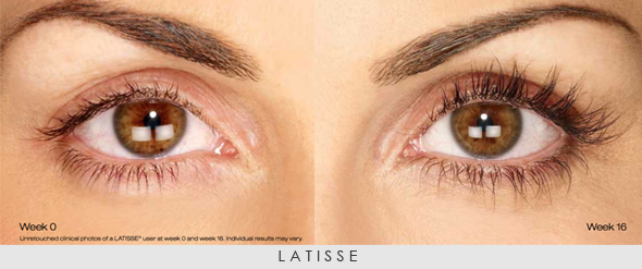 latisse-befor-and-after