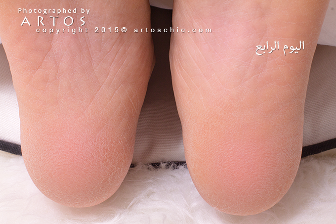 Milky-Foot--day-4-a