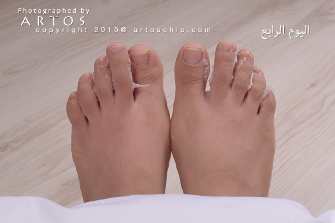 Milky-Foot--day-4-c