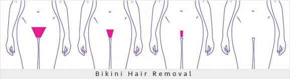 Bikini-Hair-Removal-