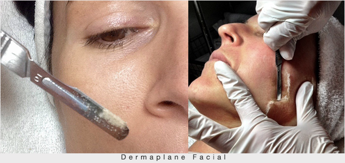 Dermaplane-Facial-resoult