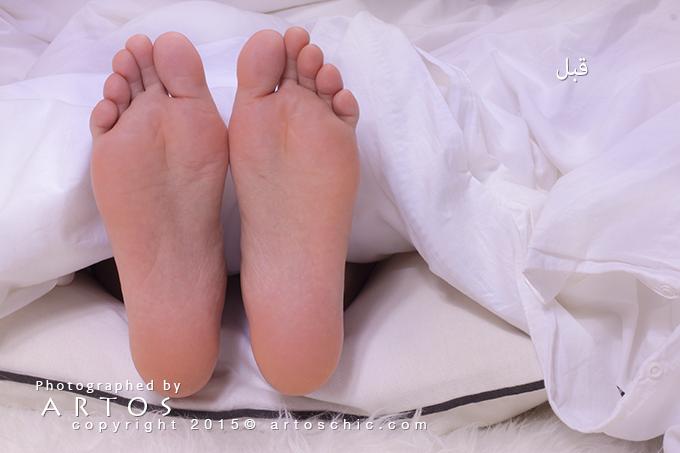 Milky-Foot--befor