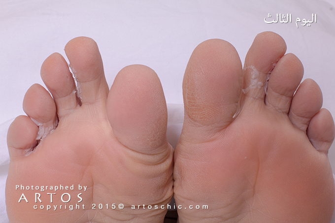 Milky-Foot--day-3-a