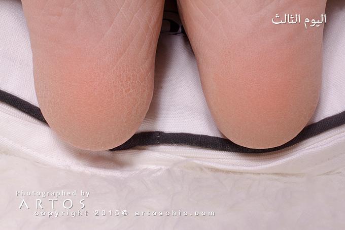 Milky-Foot--day-3-b