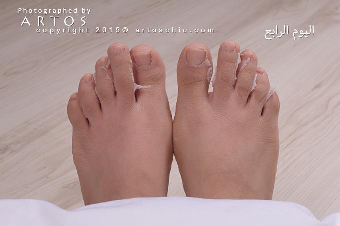 Milky-Foot--day-4-c