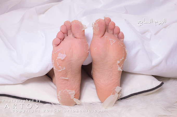 Milky-Foot--day-7