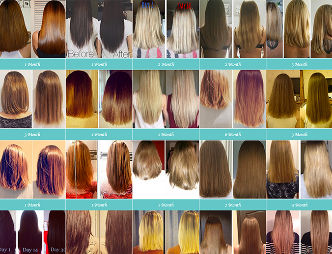 hairburst-befor-and-after