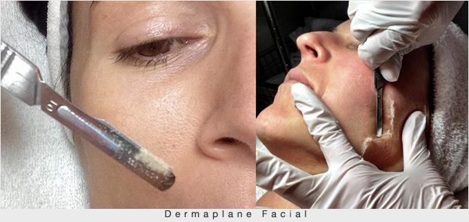 Dermaplane-Facial-resoult